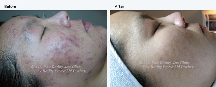 Acne Treatment Houston | Acne Specialist | Get Rid Of