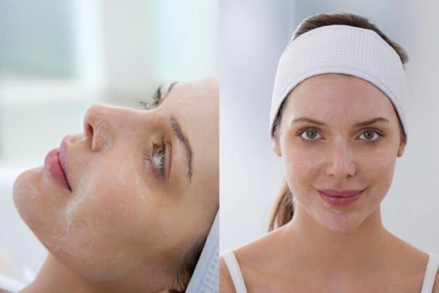 chemical peel houston