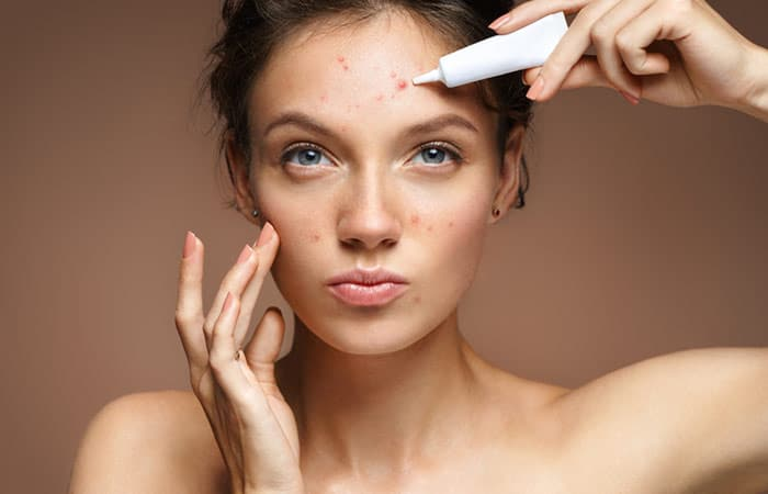 Adult Acne Treatments in Houston, TX