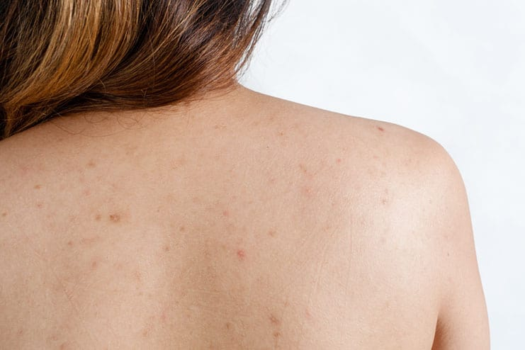 Body Acne Treatments in Houston, TX