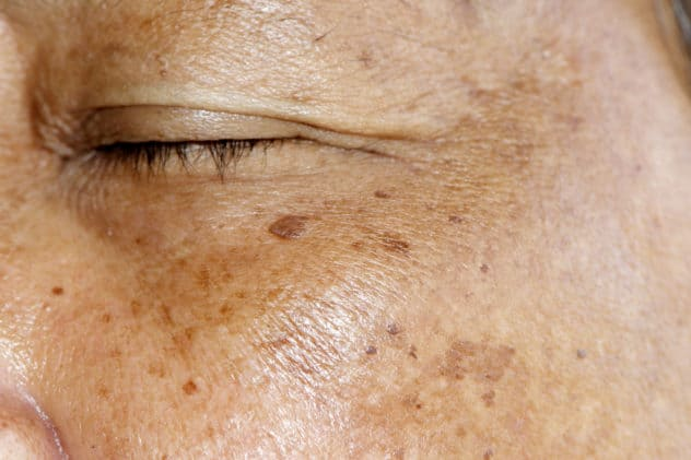 hyperpigmentation treatment in houston, tx