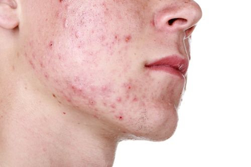Teenage Acne Treatments in Houston, TX